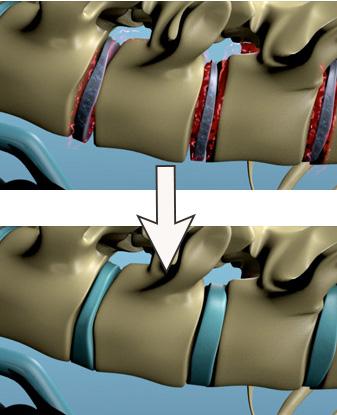 Bandscheibe regenerieren