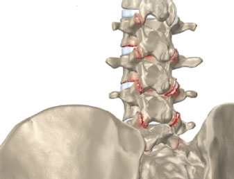 Rückenarthrose